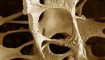 Abaloparatide molto bene in fase II nell'aumentare la densità ossea