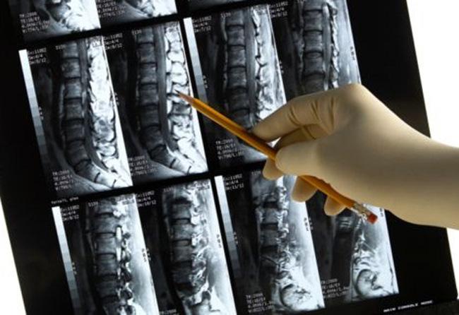 Fratture da fragilità ossea, arriva la prima guida pratica per non ricascarci