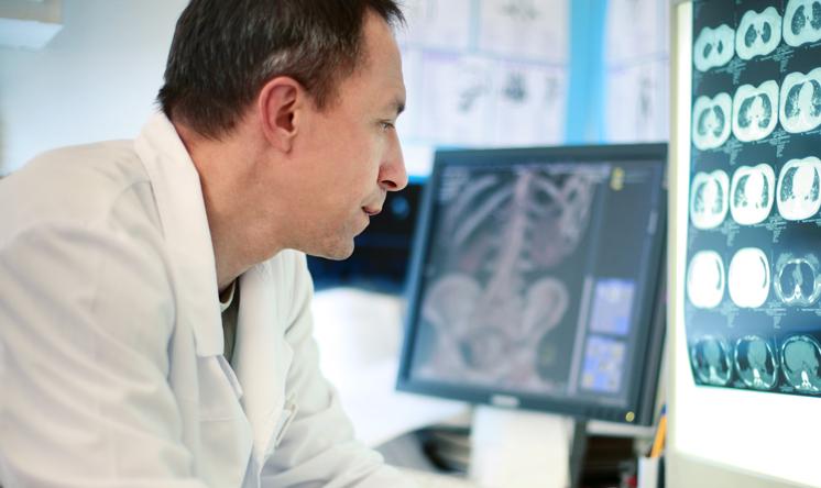 Osteoporosi, il rischio fratturativo aumenta dopo stop alla terapia con denosumab ma può essere prevenuto